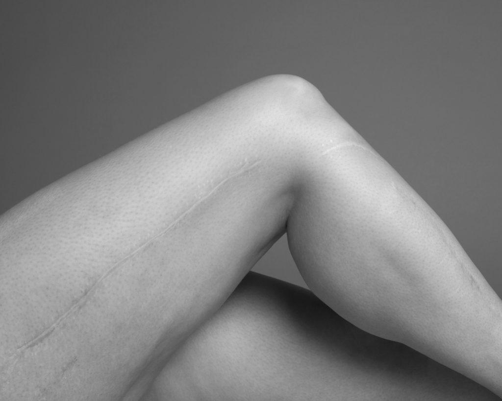 Hip & Knee Specialties
